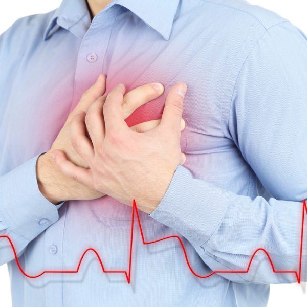 Signs of a Heart Attack