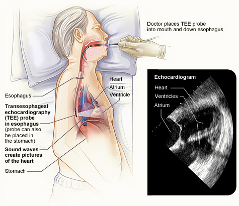 transesophageal echocardiography procedure